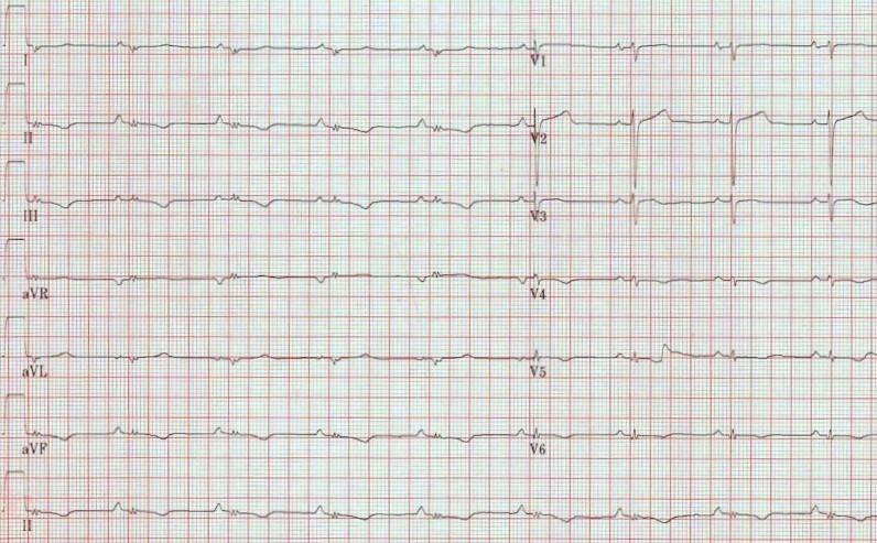 Elderly male pt. found unresponsive. ECG comments?