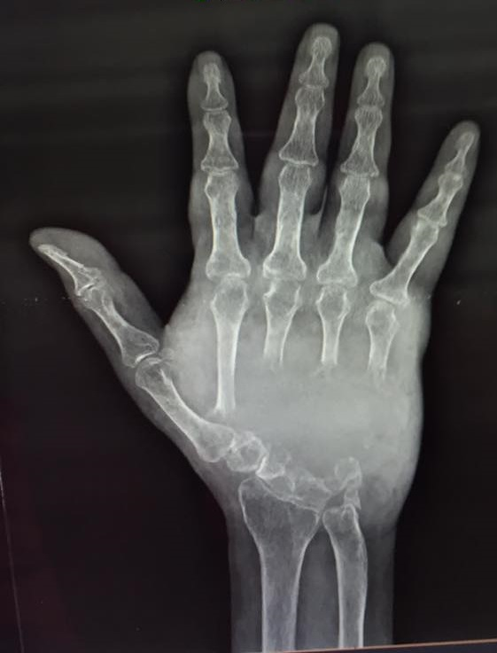 Female pt. with vanishing bones. Your diagnosis?