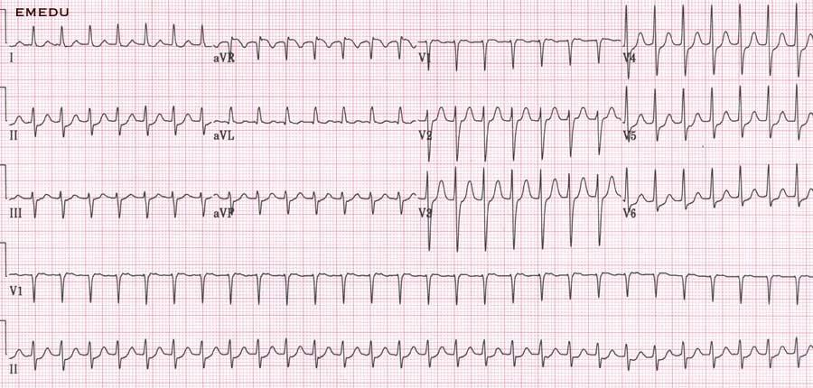 Female pt. with sensation of fluttering in chest. ECG findings?