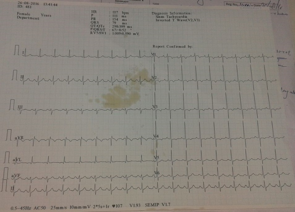 Elderly male with h/o heart attack. Comments on ECG?