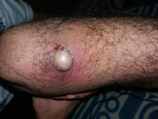 Young male with growing swelling of left knee. Your diagnosis?