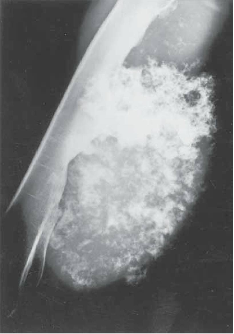 Spot abnormality in the X-rays shown?