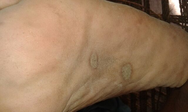 Lesions on sole of pt. with prostate adenocarcinoma. Management?