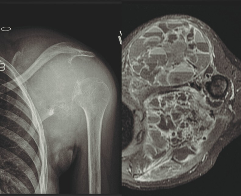 What can you identify in the given X-ray?