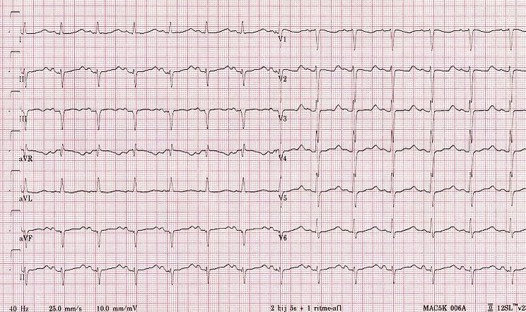 Elderly female presented in emergency department with diarrhea and vomiting. ECG findings?