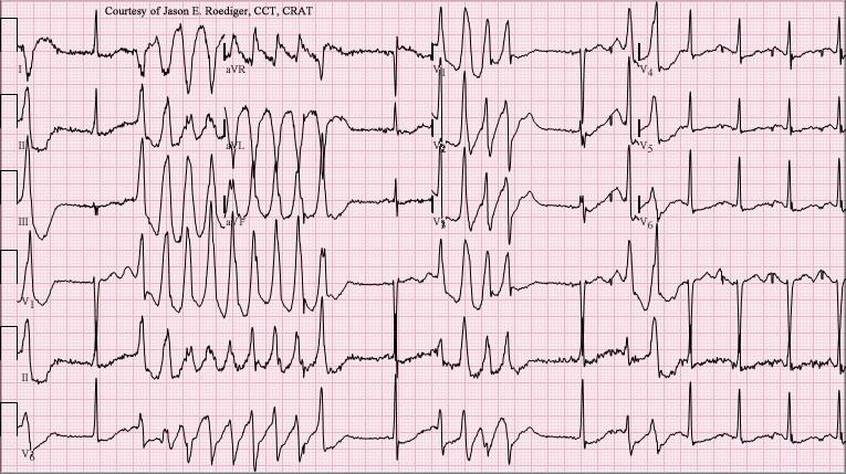 Male pt. found collapsed at home. Your comments on ECG?
