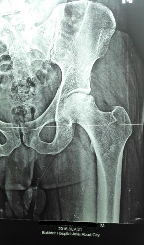 Male pt. with bilateral hip joint pain. X-ray and MRI findings?