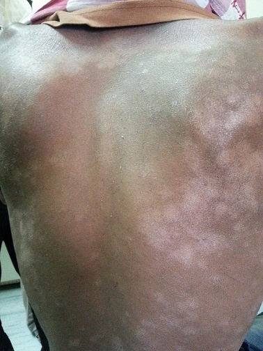 Pt. with non pruritic lesion since 4 years. Diagnosis?