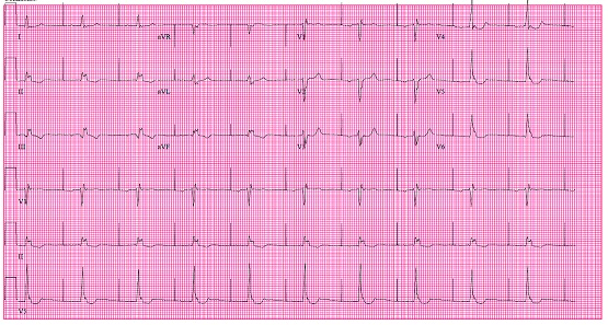 Diabetic elderly male with h/o HTN, Hyperlipidemia and CABG. Findings in ECG?