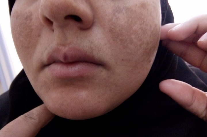 Female pt. with lesions on face. Dx and Tx?