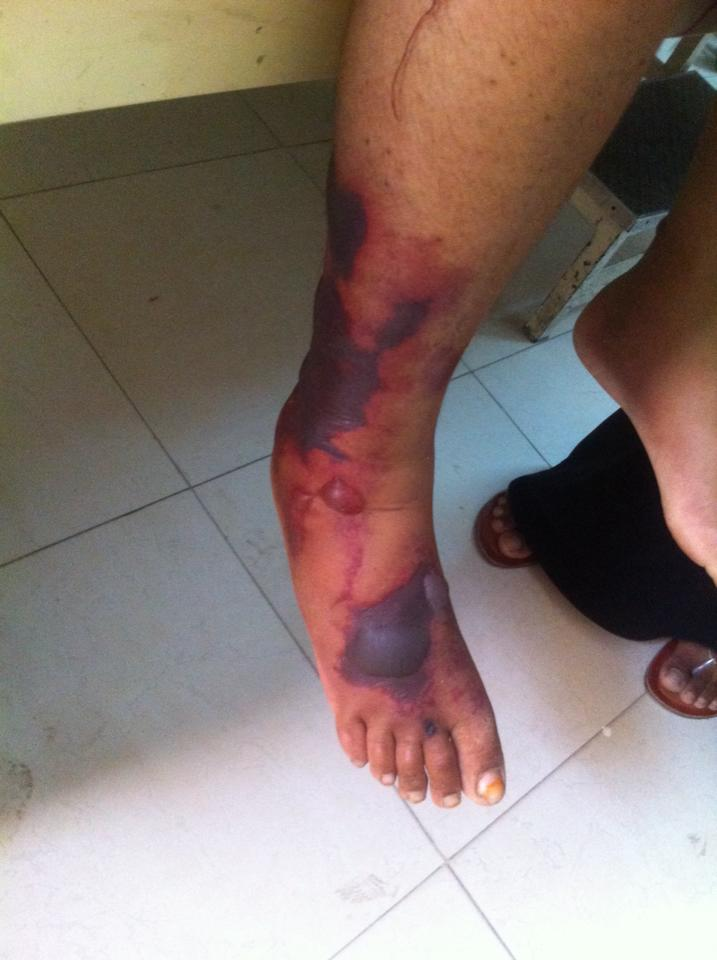 Young female with multiple tender hemorrhagic blisters and retiform purpura. Comments?