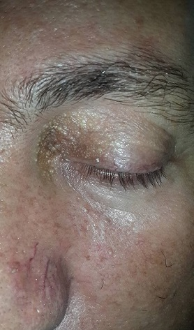 Asymptomatic white papules on the left upper eye lid. Treatment?