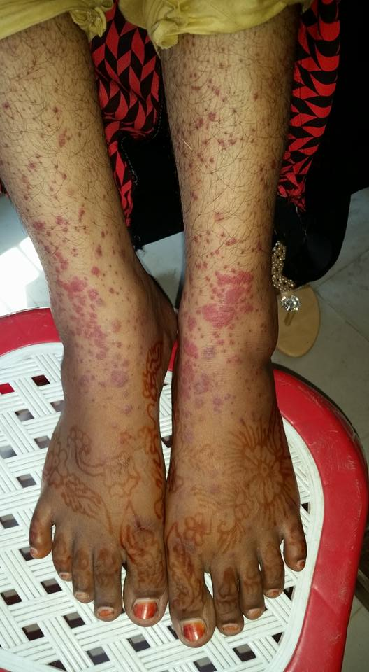 Young girl with painful rashes. Comments?