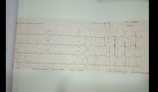 Interpret the ECG?