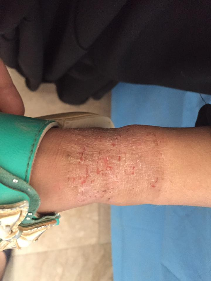 Young girl with itchy lesions. Management?