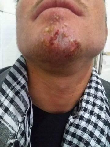 Painful lesion on face since a week. Diagnosis?