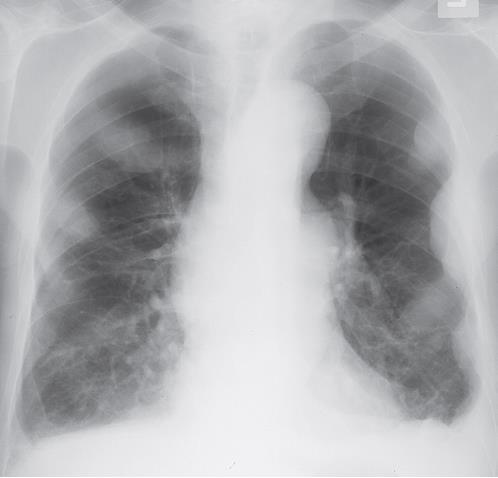 Suggest findings in CXR?