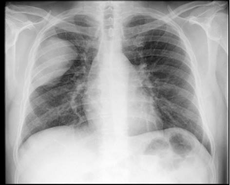 What abnormalities can you spot in CXR shown?