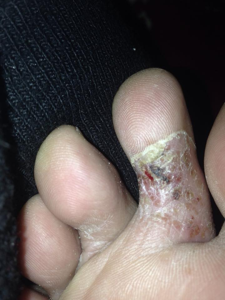 Suggest diagnosis?