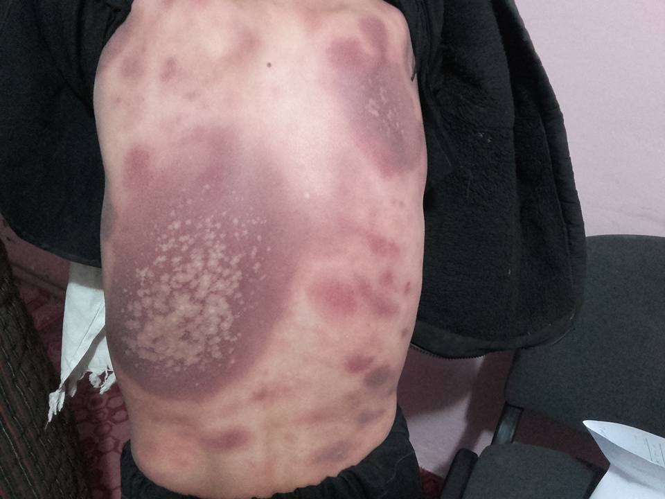 Comments on skin condition of this young boy?