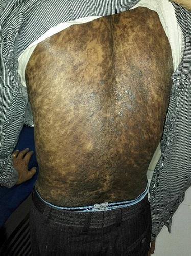 Skin lesions in a patient with TB.