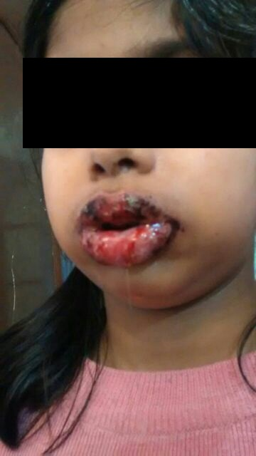 Young female with lesions on lips
