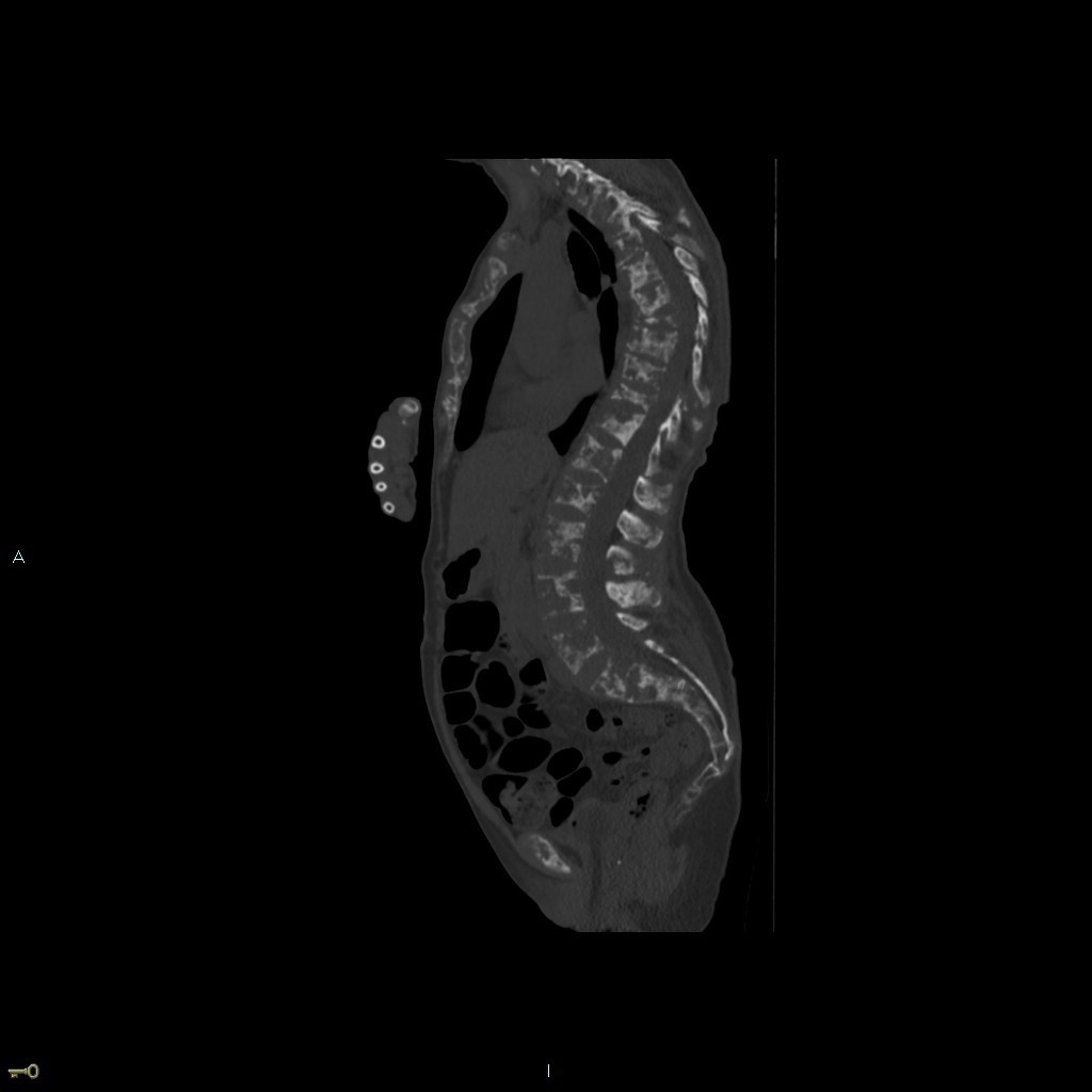 Pain in hip and right shoulder<br>Untreated breast cancer in 59y/o female