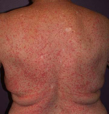 Skin condition, Diagnosis?