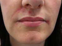 Acne eruptions<br>Suggest dx & tx