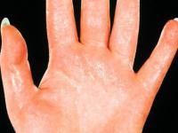 Sweat ducts on hands<br>Suggest management