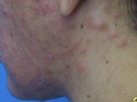 Itchy lesions on face & neck in HIV+ patient