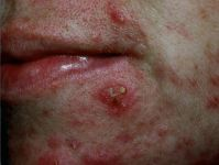 What is this skin condition called?