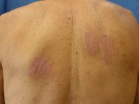 Pt with multiple ill-defined thickened plaques on trunk & proximal limbs causing severe itching
