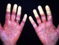 Skin condition due to the job involving repeated hand stress