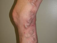 Skin affected with overlying varicose veins
