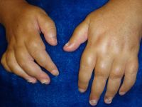 Swelling in hands<br>Suggest Dx & Tx