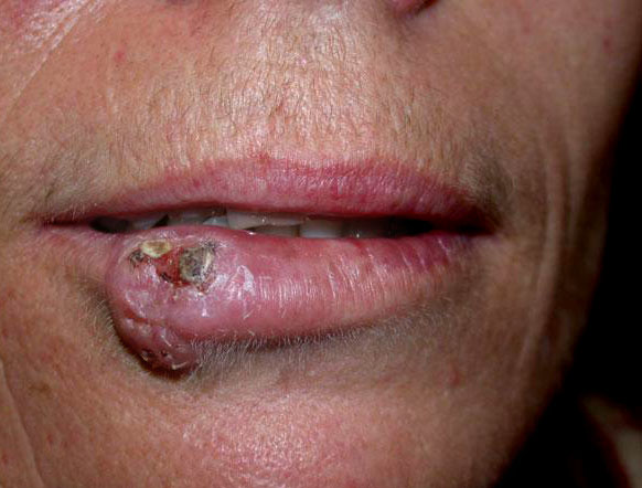 Smoker with tumor like lesion on lips.<br>tx?