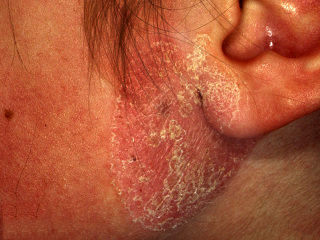 Skin conditions in 14y/o & 8y/o.<br>What is your dx?
