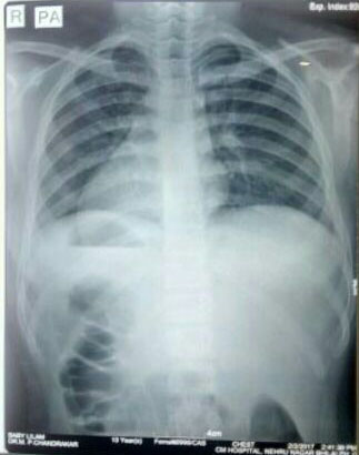 13y/o with c/o abdominal pain<br>What are your comments?