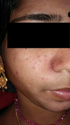 22y/o with Acne complaint, tx?