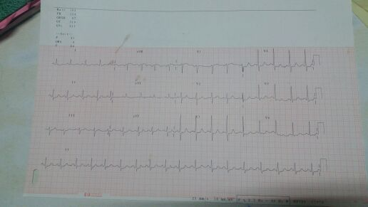 64y/o male presented with chest pain