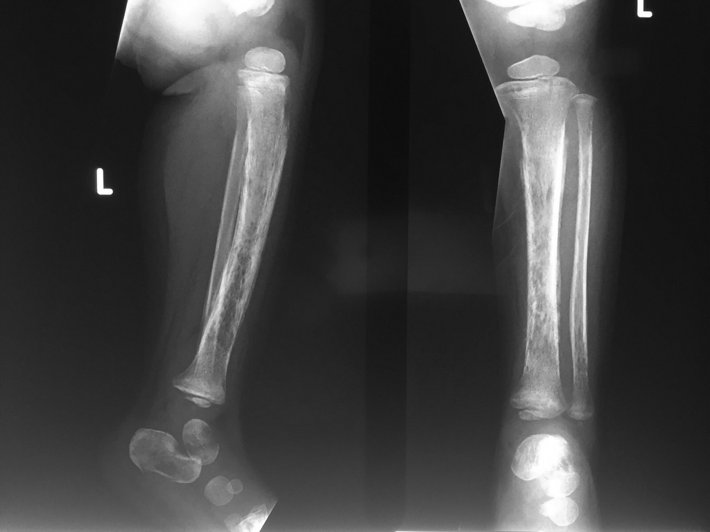 Child with c/o pain in left knee