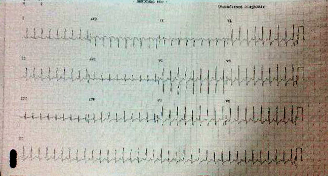 30y/o came to casualty with c/o palpitations,<br>Findings from the ECG?