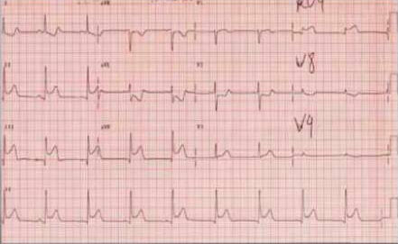 Findings from the ECG?