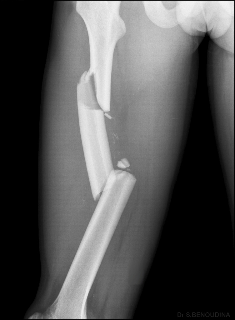 20y/o leg Xray post accident