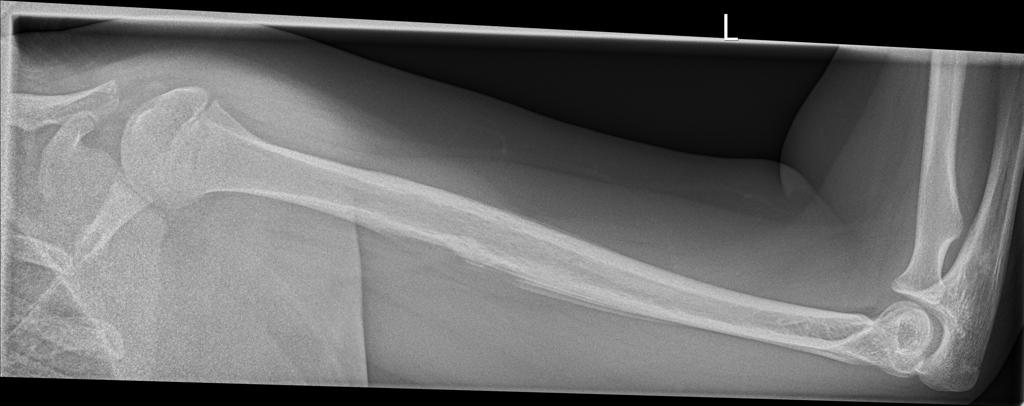 Injury to left arm trama<br>What are your findings?