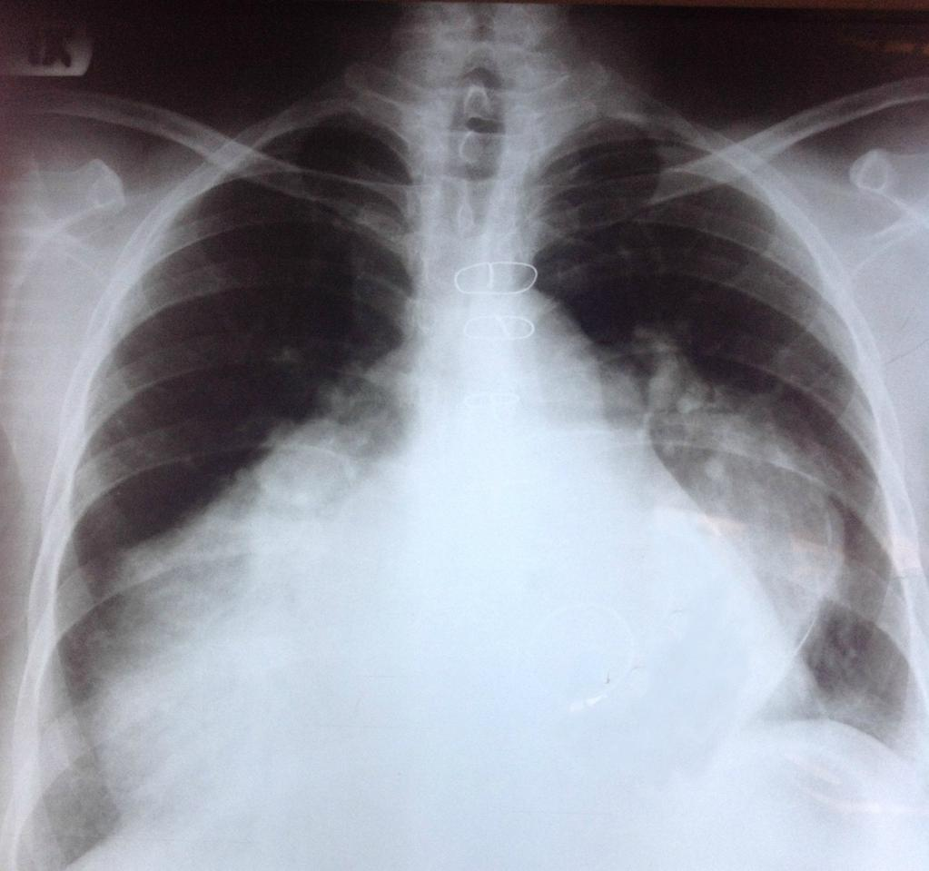 Shortness of breath, H/o Mitral valve replacement due to rheumatic carditis