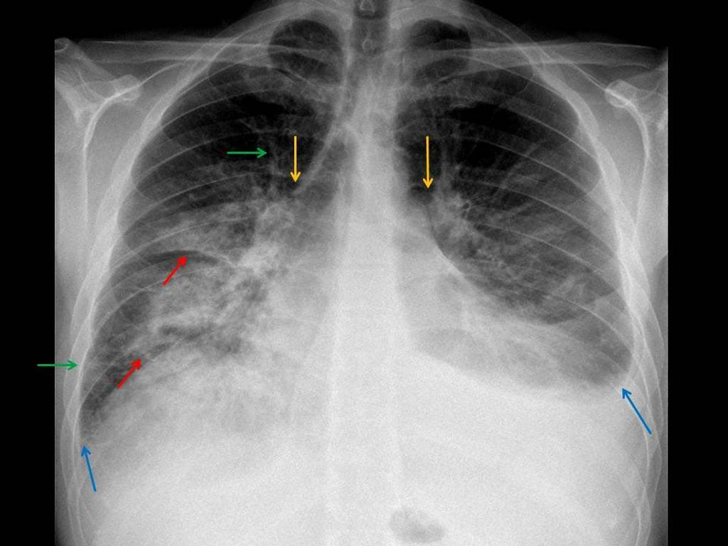 Alcoholic with acute onset of dyspnea<br>Your findings from the annotated images?