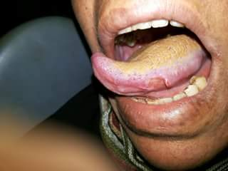 Chronic ulcer caused by traumatic extraction<br>What is the line of treatment?