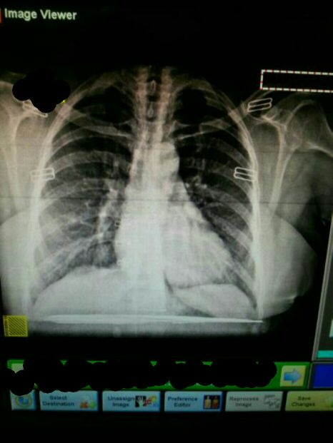 Associated right lung pain with dry cough<br>Suggest Dx